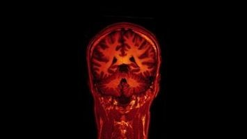 Cancro Cervello Speranza di vita