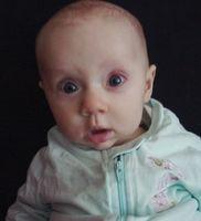 Infant Sintomi problemi di cuore