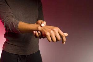 Segni e sintomi di artrite reumatoide a Polsi