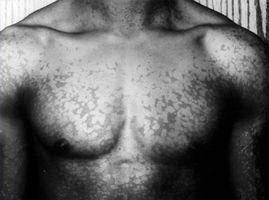 Fungo della pelle che provoca macchie bianche