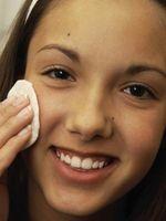 Come trattare un Mosquito Bite viso