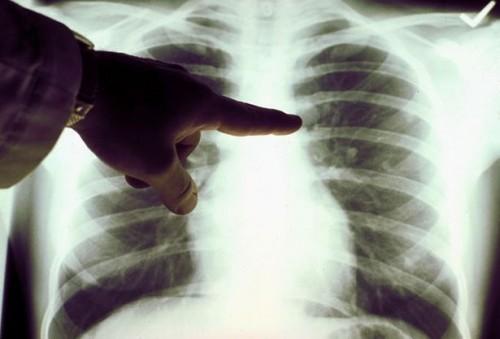 Come sanno cosa aspettarsi nelle fasi finali di cancro al polmone