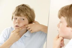 Do trattamenti laser Lavora con cicatrici da acne?