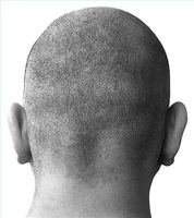 Trattamenti Alopecia Aerota steroidi