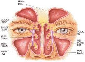 Sollievo per Post nasale Drip