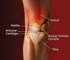 Infortunio al ginocchio Sintomi e diagnosi