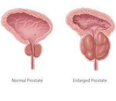 Effetti collaterali di chirurgia laser della prostata
