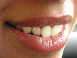 A proposito di sbiancamento dentale