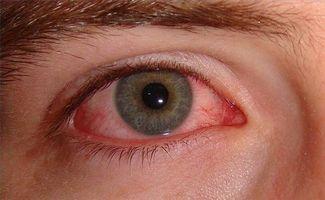 A proposito di infezioni agli occhi