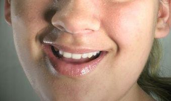 Trattamenti Sbiancamento Dentale