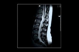 Che cosa è posteriore Disk rigonfia L1-2?