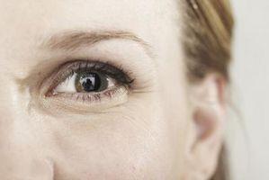 Segni e sintomi di linfoma oculare