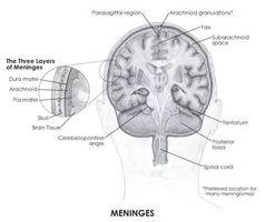 Che cosa è un tumore Meningioma?