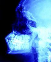 Tipo di Estrazioni denti