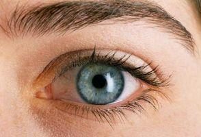 Occhio Sensibilità causa l'herpes zoster sul viso
