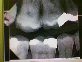 False Teeth vs.  Root Canal