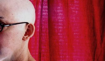 Il trattamento per la perdita dei capelli in una donna