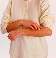 Come identificare i sintomi Inverno Itch