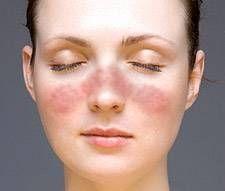 Quali sono le cause di Face Rash?