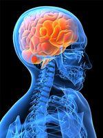 Che cosa è la displasia corticale?