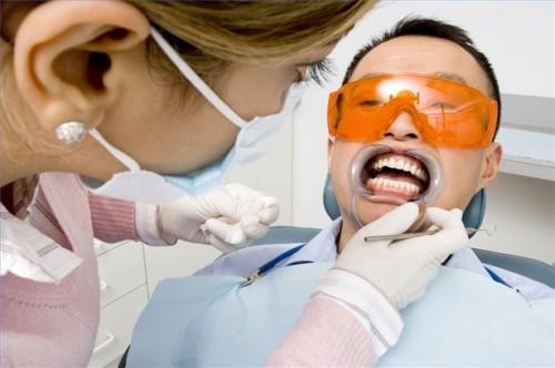 Come confrontare sbiancamento dentale con impiallacciature dentali