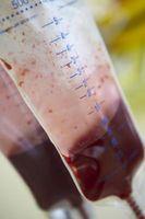 Come calcolare la saturazione di ossigeno nel sangue e gas