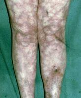 Disturbo della pelle blu