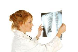 Come leggere Pulmonary Function Risultati dei test