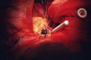 Che cosa si è verificato quando l'aorta del cuore si è allargato?