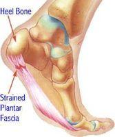 Cause e sintomi di dolore del tallone