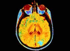 Effetti collaterali del cervello radioterapia su cancerose tumori
