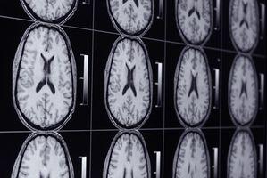 La differenza tra un meningioma e un Schwannoma