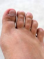Segni e sintomi della gotta nelle dita dei piedi