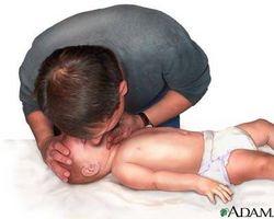 Come eseguire la respirazione artificiale per un neonato