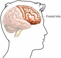 Lobo frontale sintomi di ictus