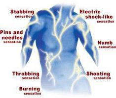 Trattamento infrarossi per neuropatia