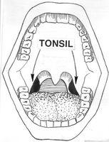 Come è un intervento chirurgico Tonsillectomia Fatto in un adulto?