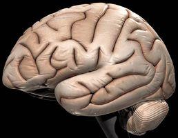 I sintomi tumore cerebrale negli adulti
