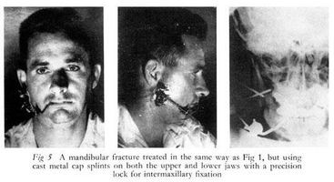 Quanto tempo ci vuole un rotto mascella per guarire?