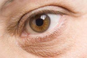 Knox Gelatina e occhiaie sotto gli occhi