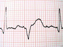 Specifiche tecniche per un registratore Holter