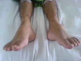 Quali sono i trattamenti per piede cadente?