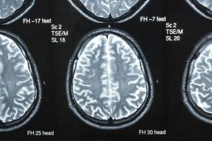 I sintomi della sostanza bianca malattia del cervello