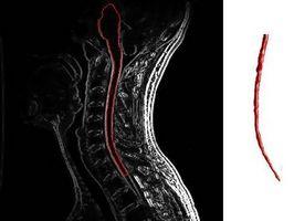 Seconda Fase sintomi della sclerosi multipla