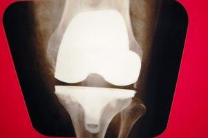 Segni e sintomi di un ginocchio iperesteso
