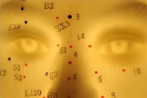 Come indurre il travaglio con dei punti di agopuntura stimolazione