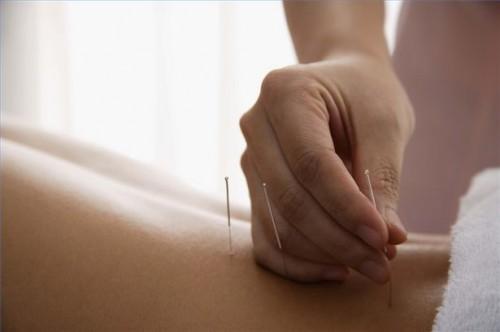 Come trattare la menopausa Uso Medicina Cinese