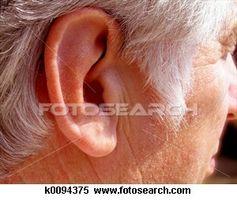 Rugosa lobi delle orecchie e malattie cardiache