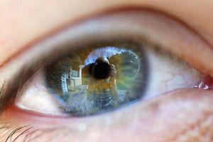 Vertigini causate da pressione oculare
