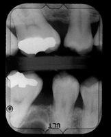Come curare il dolore del dente